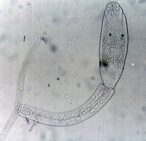 Cercaria larva under a light microscope